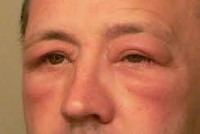 image of a man with a swollen face as a result of anaphylaxis.