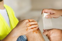 first aid at work - image of worker having his leg bandaged